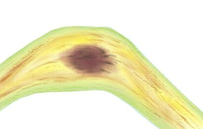 葉枯病におかされたニンニクの茎葉
